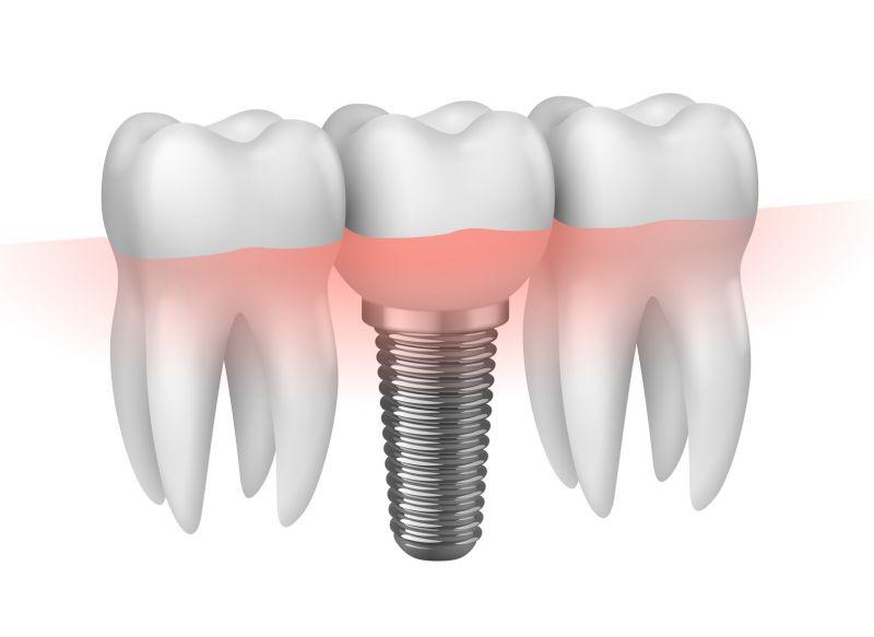 Offerta Implantologia a carico immediato Castelfranco Emilia - Protesi dentale fissa mobile