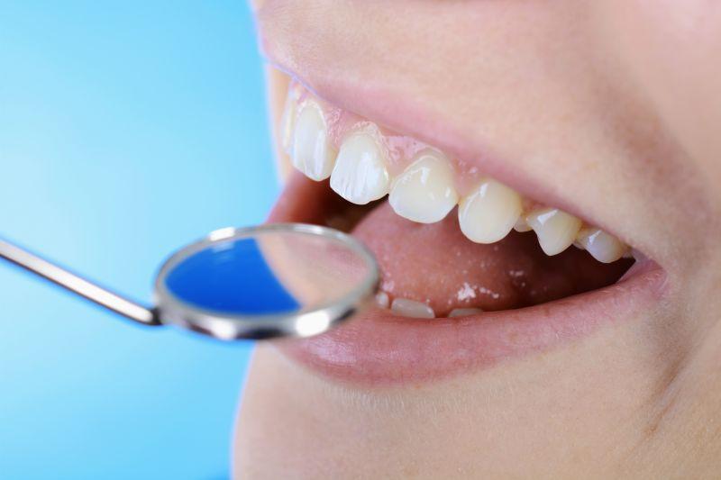 Offerta cura del mal di denti - Promozione trattamento della parodontite Reggio Emilia